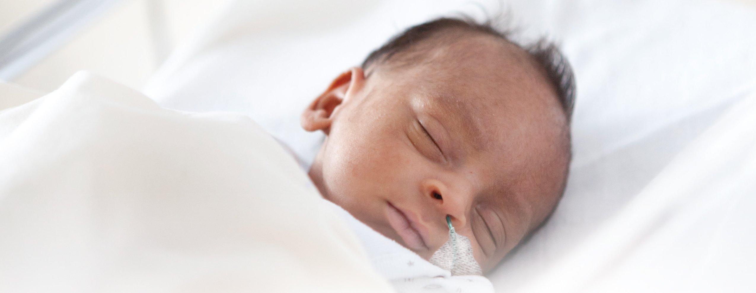 proalct-cr-preemie-baby